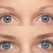 resultados-tratamiento-m2-lashes