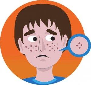 Recomendaciones para piel con acné