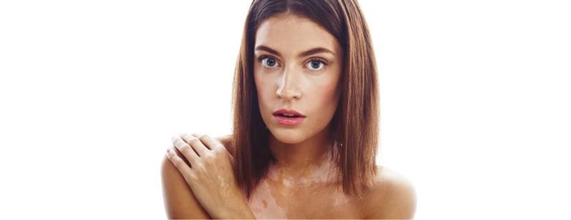 Cómo maquillar manchas de vitíligo